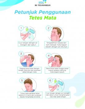 Tetes Mata