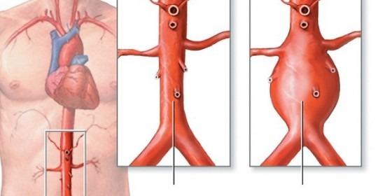 Mengenali Penyakit Aneurisma Aorta