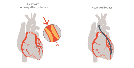 Solusi Pembuluh Darah Jantung Menyempit & Kaku